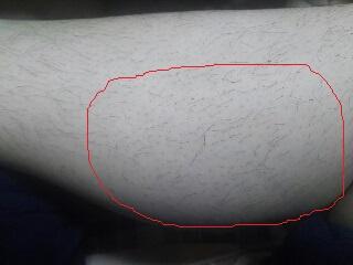 【チャレンジ】尿素クリームで埋没毛は改善できるのか(その2・塗り続けた結果…)